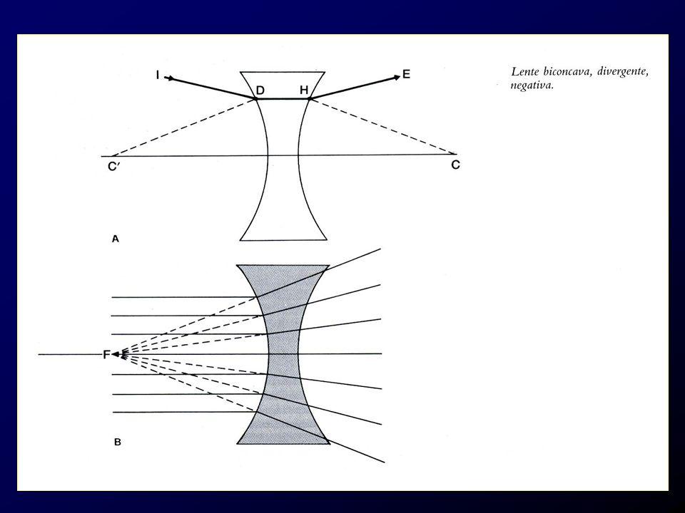 Ipermetropia Lipermetrope accusa difficoltà nella lettura prolungata (disturbi astenopeici) e può predisporre allesotropia (strabismo convergente) Se di entità modesta nel soggetto giovane viene compensata spontaneamente dallaccomodazione Unipermetropia di 2-3 D è normale nellinfanzia e tende a scomparire con lo sviluppo Correzione con lenti sferiche positive (convergenti) o lenti a contatto dopo esame della rifrazione in cicloplegia (entità dellipermetropia latente)