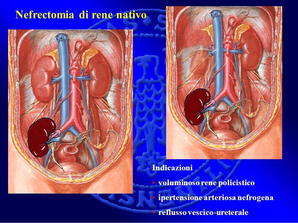 Nefrectomia di rene nativo Indicazioni voluminoso rene policistico ipertensione arteriosa nefrogena reflusso vescico-ureterale