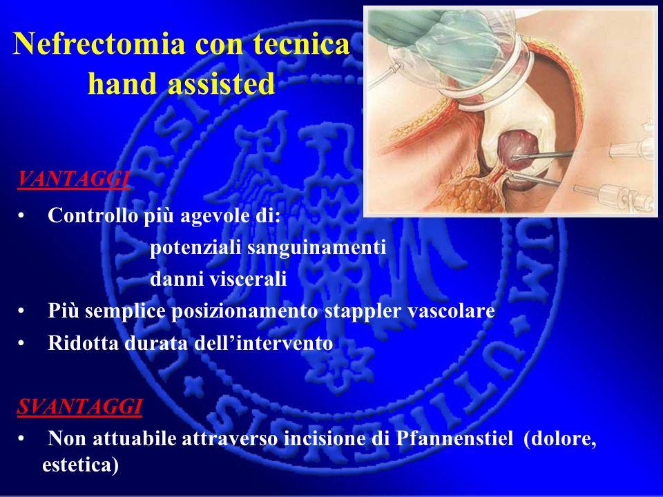Nefrectomia con tecnica hand assisted VANTAGGI Controllo più agevole di: potenziali sanguinamenti danni viscerali Più semplice posizionamento stappler
