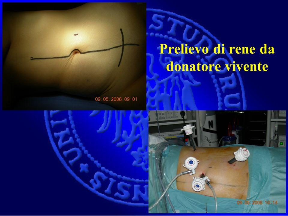 Prelievo di rene da donatore vivente