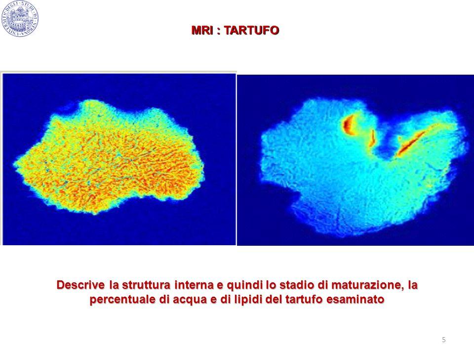 5 MRI : TARTUFO Descrive la struttura interna e quindi lo stadio di maturazione, la percentuale di acqua e di lipidi del tartufo esaminato
