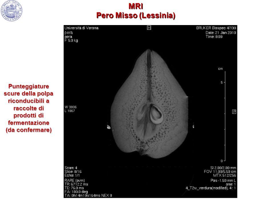 Punteggiature scure della polpa riconducibili a raccolte di prodotti di fermentazione (da confermare) MRI Pero Misso (Lessinia)