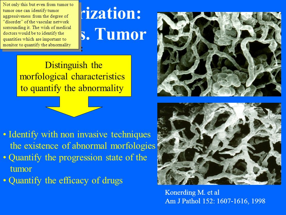 Vascularization: Tumor vs. Tumor Konerding M. et al Am J Pathol 152: 1607-1616, 1998 Aim: Distinguish the morfological characteristics to quantify the