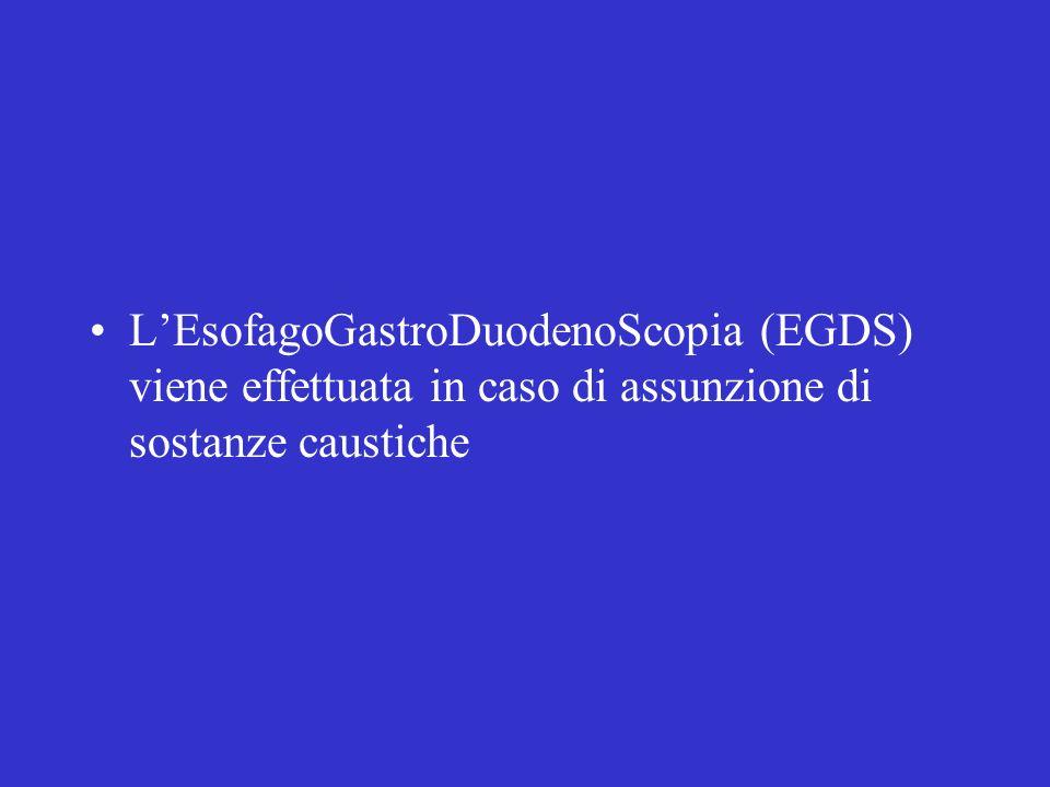 LEsofagoGastroDuodenoScopia (EGDS) viene effettuata in caso di assunzione di sostanze caustiche