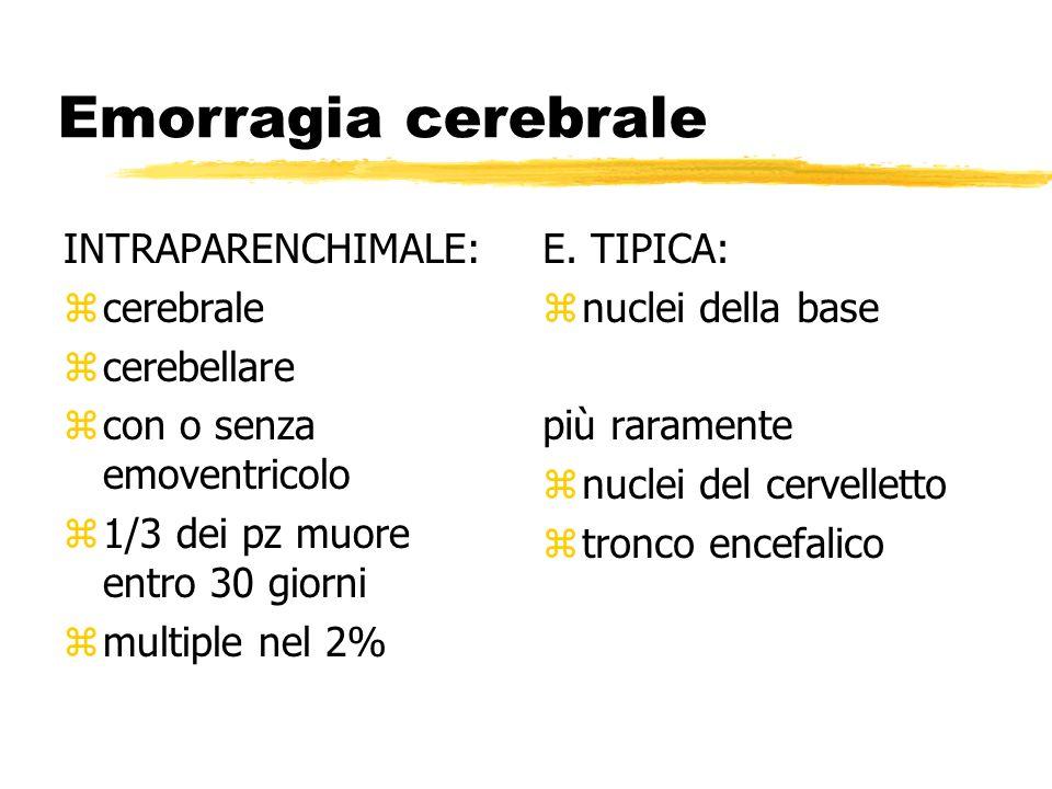 Emorragia cerebrale INTRAPARENCHIMALE: zcerebrale zcerebellare zcon o senza emoventricolo z1/3 dei pz muore entro 30 giorni zmultiple nel 2% E.
