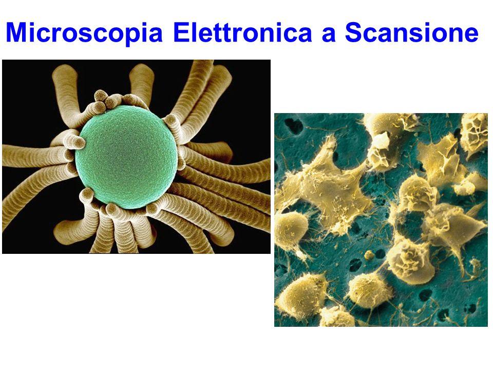 Fotografia al SEM delle colonie a ventaglio di una diatomea Immagine al SEM di cellule staminali del midollo osseo umano Microscopia Elettronica a Scansione