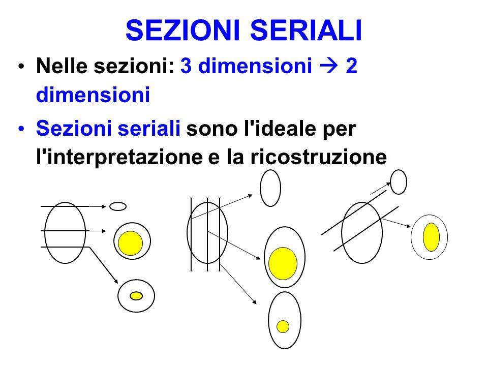 Sezioni seriali Sezioni seriali sono l ideale per l interpretazione e la ricostruzione SEZIONI SERIALI