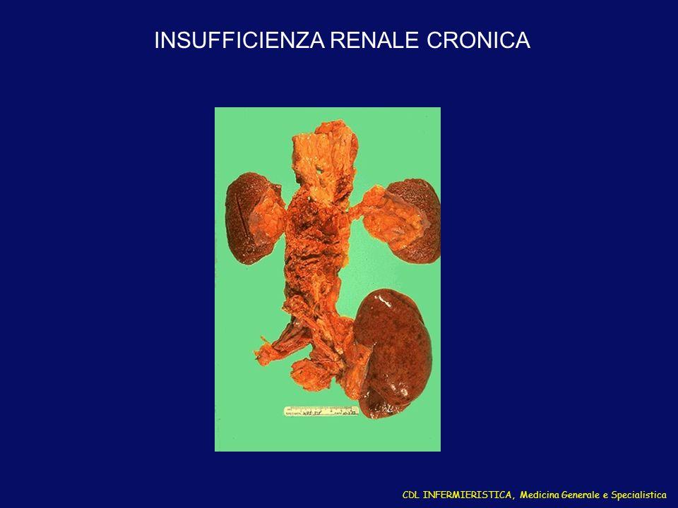 CDL INFERMIERISTICA, Medicina Generale e Specialistica INSUFFICIENZA RENALE CRONICA