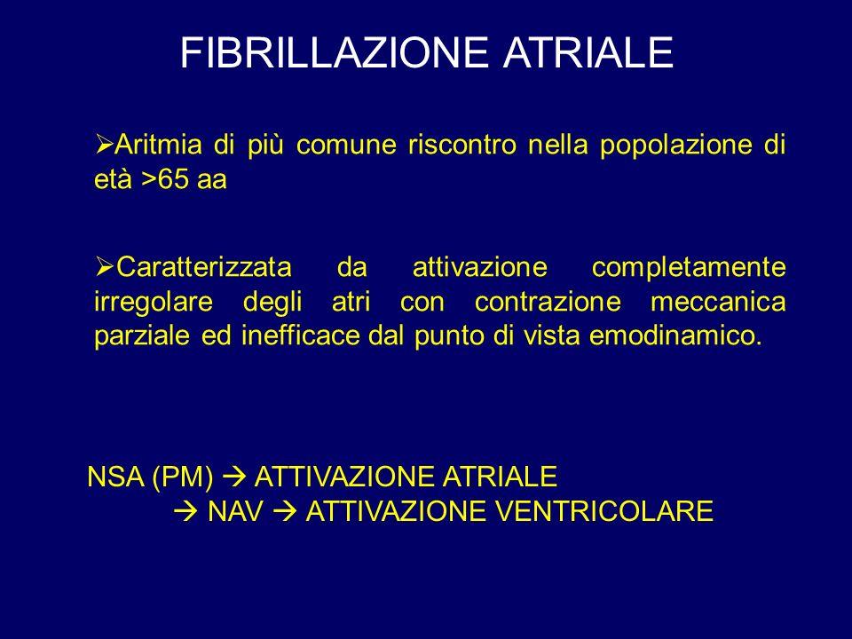 FIBRILLAZIONE ATRIALE Aritmia di più comune riscontro nella popolazione di età >65 aa Caratterizzata da attivazione completamente irregolare degli atri con contrazione meccanica parziale ed inefficace dal punto di vista emodinamico.