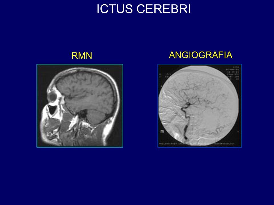 ICTUS CEREBRI RMN ANGIOGRAFIA