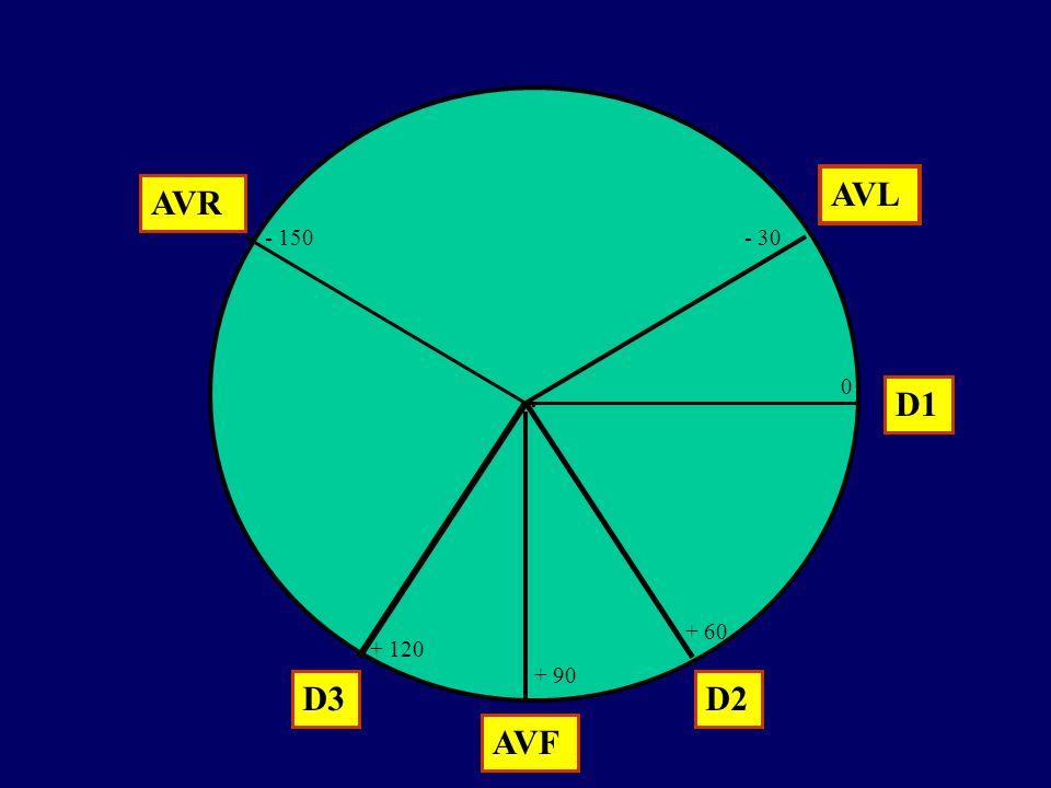 . AVR AVL AVF D1 D2D3 - 30 0 + 60 + 90 + 120 - 150