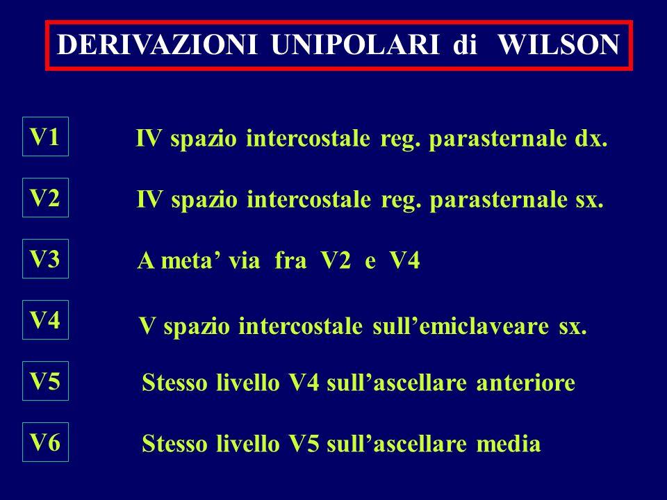 DERIVAZIONI UNIPOLARI di WILSON V1 V2 V3 V4 V5 V6 IV spazio intercostale reg. parasternale dx. IV spazio intercostale reg. parasternale sx. A meta via