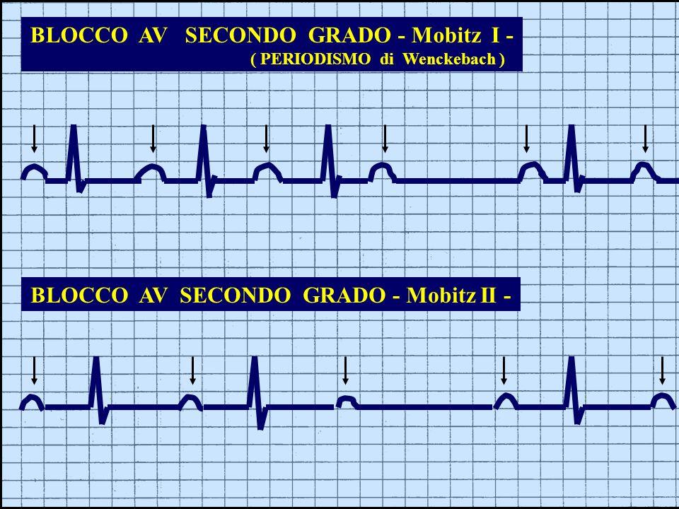 BLOCCO AV SECONDO GRADO - Mobitz I - ( PERIODISMO di Wenckebach ) BLOCCO AV SECONDO GRADO - Mobitz II -