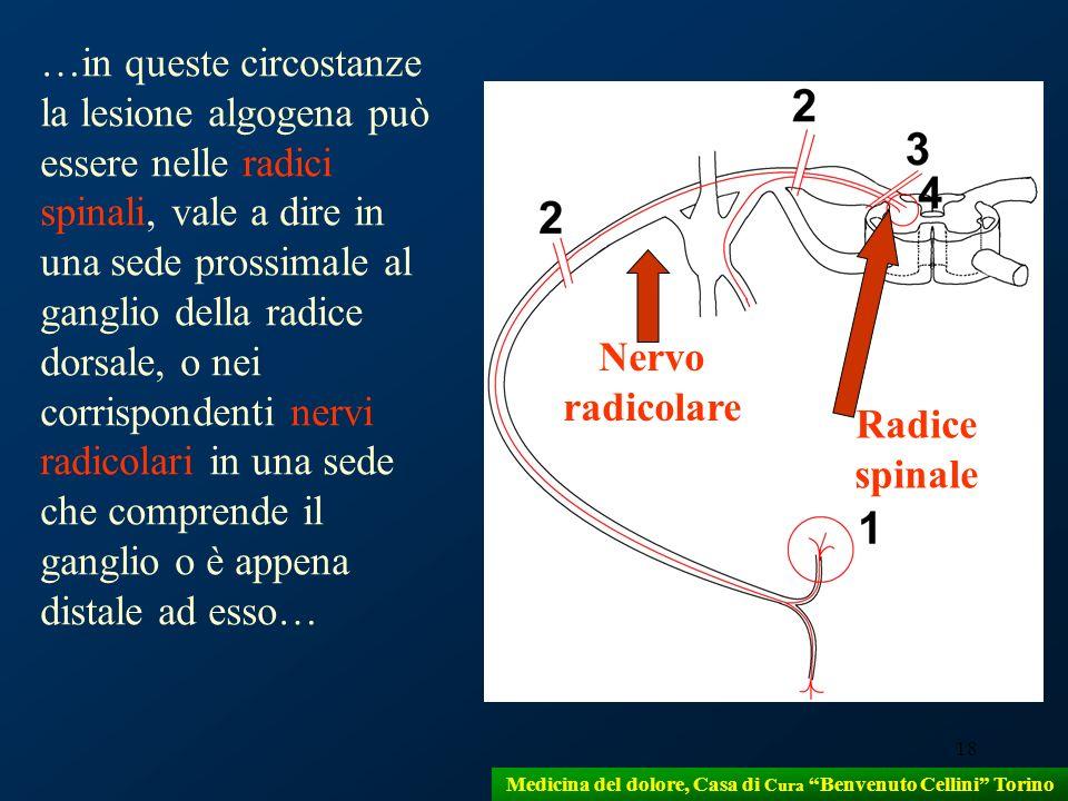 18 Medicina del dolore, Casa di Cura Benvenuto Cellini Torino …in queste circostanze la lesione algogena può essere nelle radici spinali, vale a dire