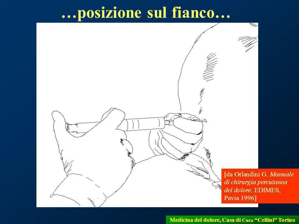 20 [da Orlandini G. Manuale di chirurgia percutanea del dolore. EDIMES, Pavia 1996] …posizione sul fianco… Medicina del dolore, Casa di Cura Cellini T