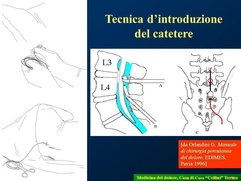 31 Tecnica dintroduzione del catetere [da Orlandini G. Manuale di chirurgia percutanea del dolore. EDIMES, Pavia 1996] Medicina del dolore, Casa di Cu