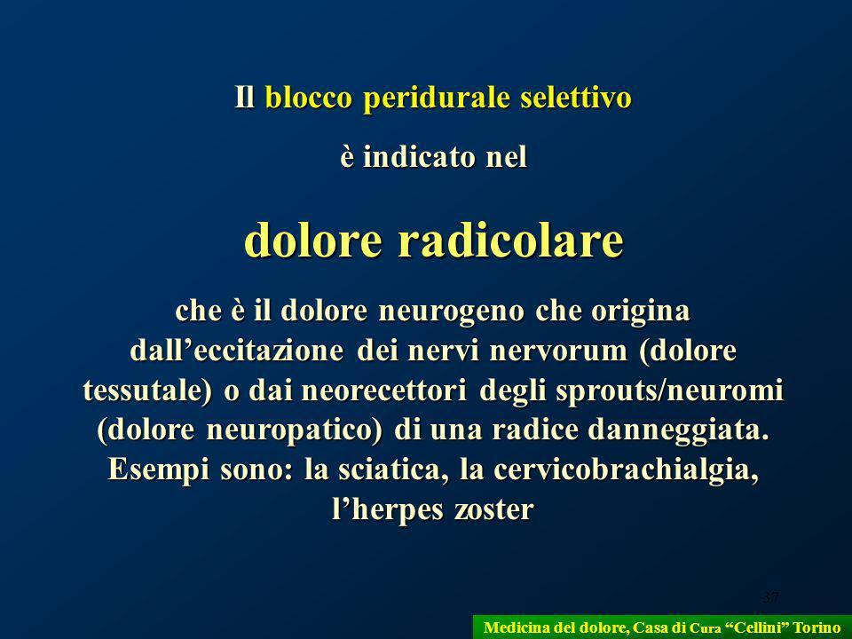 37 Il blocco peridurale selettivo è indicato nel dolore radicolare che è il dolore neurogeno che origina dalleccitazione dei nervi nervorum (dolore te
