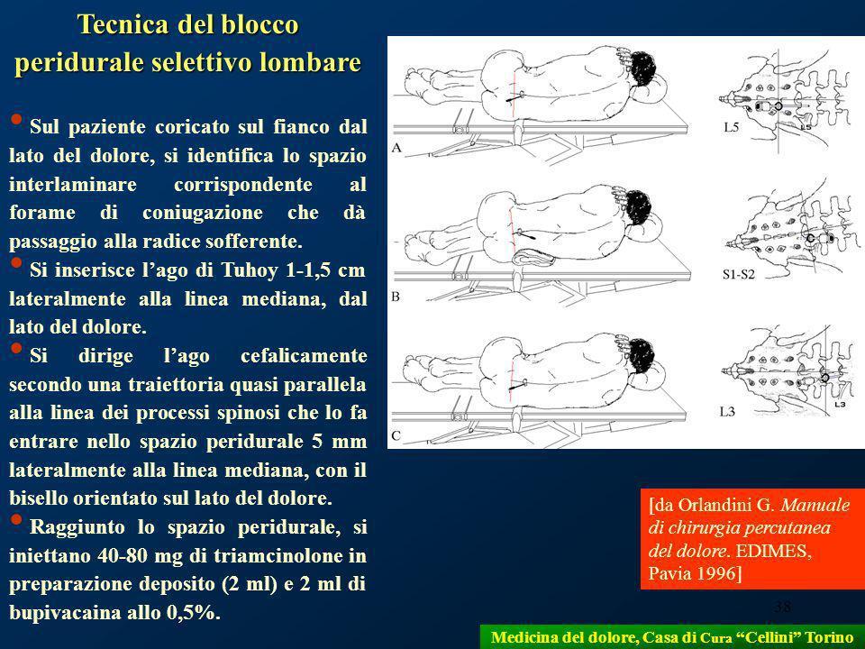 38 Tecnica del blocco peridurale selettivo lombare Sul paziente coricato sul fianco dal lato del dolore, si identifica lo spazio interlaminare corrisp
