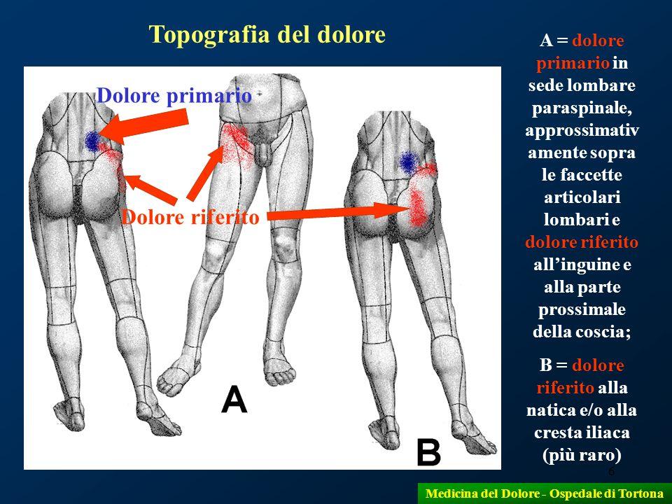 6 A = dolore primario in sede lombare paraspinale, approssimativ amente sopra le faccette articolari lombari e dolore riferito allinguine e alla parte
