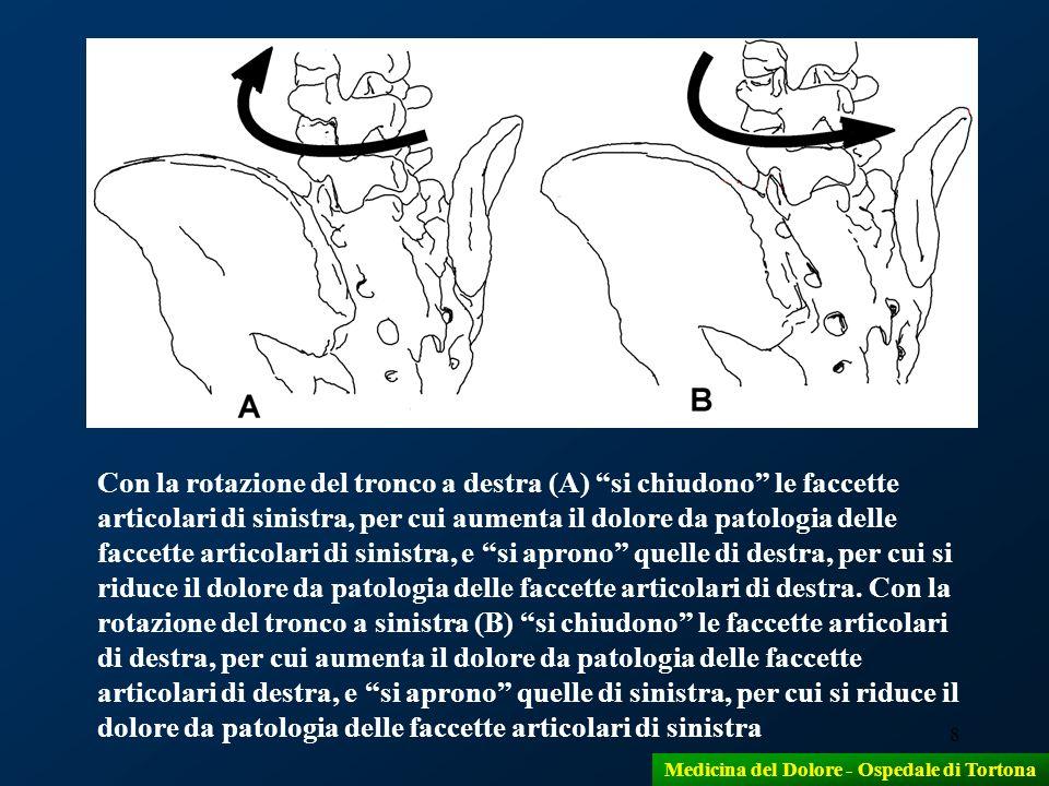 8 Con la rotazione del tronco a destra (A) si chiudono le faccette articolari di sinistra, per cui aumenta il dolore da patologia delle faccette artic