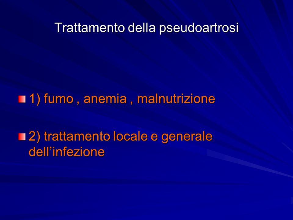 Trattamento della pseudoartrosi 1) fumo, anemia, malnutrizione 2) trattamento locale e generale dellinfezione