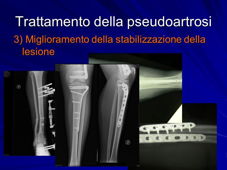 Trattamento della pseudoartrosi 3) Miglioramento della stabilizzazione della lesione