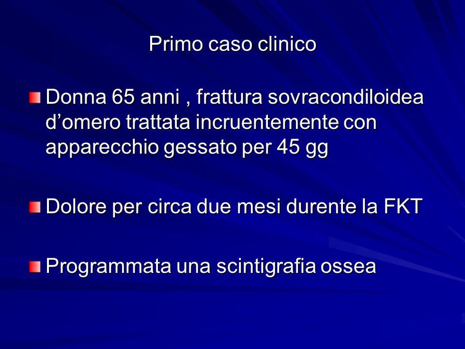 Primo caso clinico Donna 65 anni, frattura sovracondiloidea domero trattata incruentemente con apparecchio gessato per 45 gg Dolore per circa due mesi