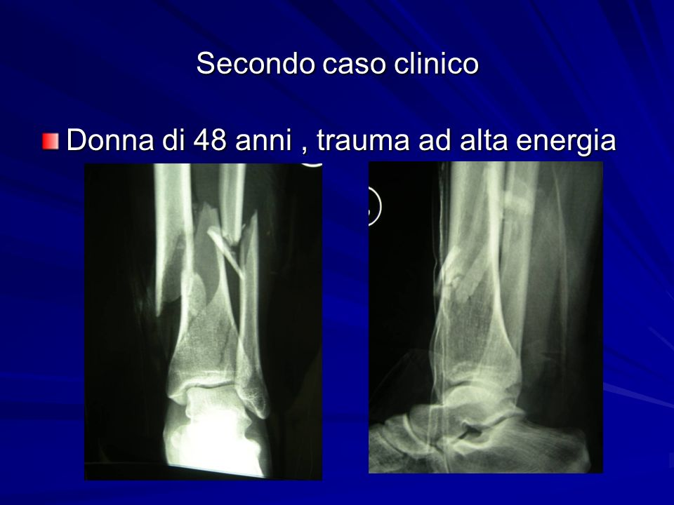 Secondo caso clinico Donna di 48 anni, trauma ad alta energia