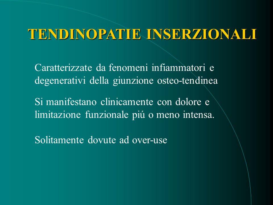 TENDINOPATIE INSERZIONALI Caratterizzate da fenomeni infiammatori e degenerativi della giunzione osteo-tendinea Si manifestano clinicamente con dolore e limitazione funzionale piú o meno intensa.