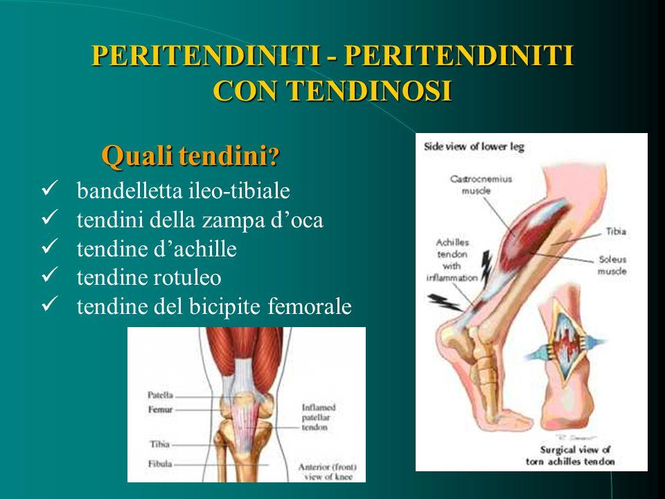 bandelletta ileo-tibiale tendini della zampa doca tendine dachille tendine rotuleo tendine del bicipite femorale Quali tendini .