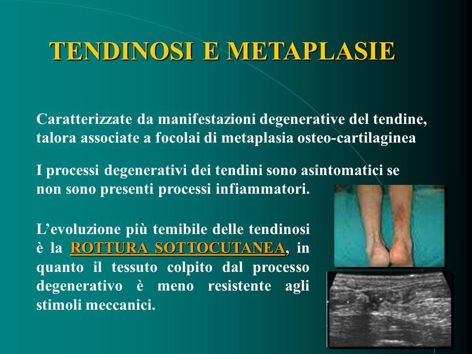 TENDINOSI E METAPLASIE I processi degenerativi dei tendini sono asintomatici se non sono presenti processi infiammatori.