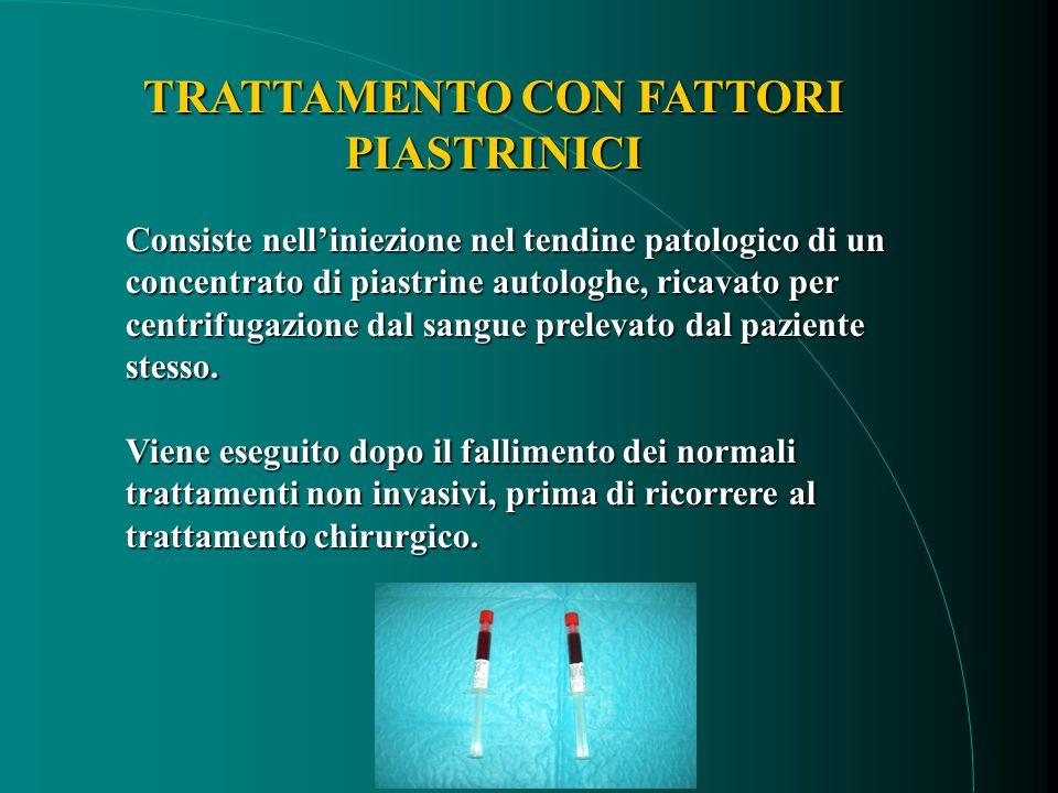 Consiste nelliniezione nel tendine patologico di un concentrato di piastrine autologhe, ricavato per centrifugazione dal sangue prelevato dal paziente stesso.