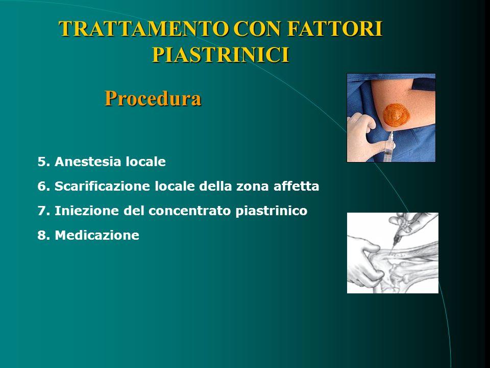 TRATTAMENTO CON FATTORI PIASTRINICI Procedura 5. Anestesia locale 6.