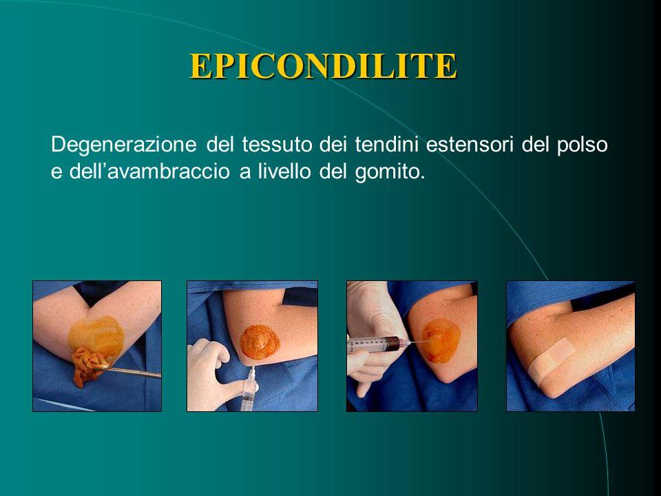 EPICONDILITE Degenerazione del tessuto dei tendini estensori del polso e dellavambraccio a livello del gomito.