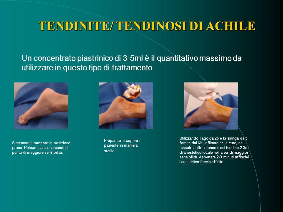 Un concentrato piastrinico di 3-5ml è il quantitativo massimo da utilizzare in questo tipo di trattamento.