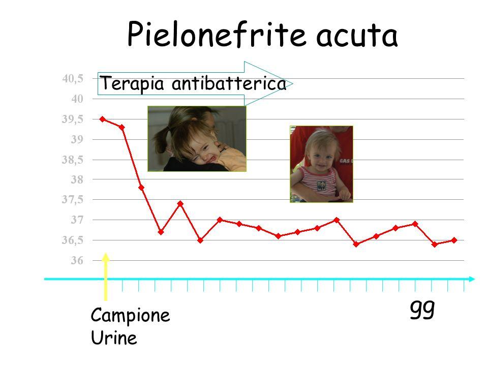 Campione Urine gg °C Pielonefrite acuta Terapia antibatterica
