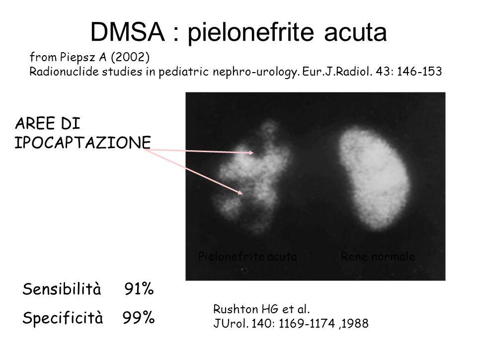 DMSA : pielonefrite acuta from Piepsz A (2002) Radionuclide studies in pediatric nephro-urology. Eur.J.Radiol. 43: 146-153 AREE DI IPOCAPTAZIONE Pielo