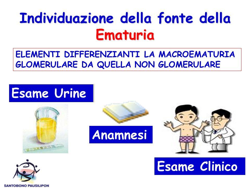 Individuazione della fonte della Ematuria ELEMENTI DIFFERENZIANTI LA MACROEMATURIA GLOMERULARE DA QUELLA NON GLOMERULARE Esame Urine Anamnesi Esame Cl