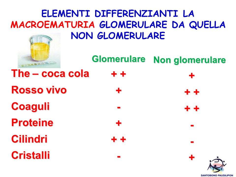 ELEMENTI DIFFERENZIANTI LA MACROEMATURIA GLOMERULARE DA QUELLA NON GLOMERULARE The – coca cola Rosso vivo CoaguliProteineCilindriCristalli Glomerulare