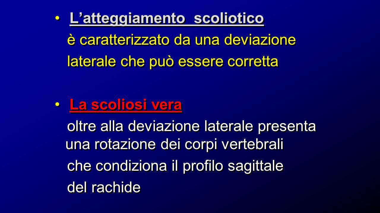 Dott.ssa Elisabetta Muccioli VALUTAZIONE GIBBO esaminatore posteriore al pz TEST DI ADAMS = asimmetria della parete posteriore del torace al bending anteriore