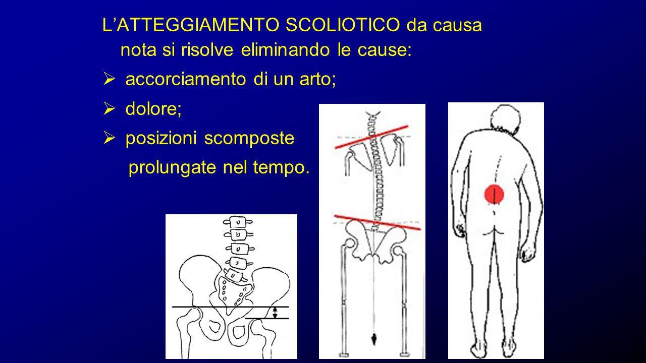 ESAME CLINICO Prominenza scapolare Asimmetria delle spalle Prominenza scapolare