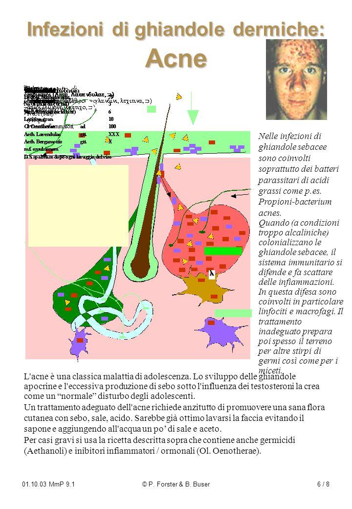 01.10.03 MmP 9.1© P. Forster & B. Buser6 / 8 Infezioni di ghiandole dermiche: Acne Nelle infezioni di ghiandole sebacee sono coinvolti soprattutto dei