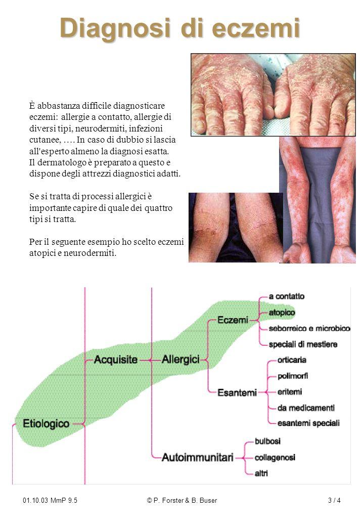 01.10.03 MmP 9.5© P. Forster & B. Buser3 / 4 Diagnosi di eczemi È abbastanza difficile diagnosticare eczemi: allergie a contatto, allergie di diversi
