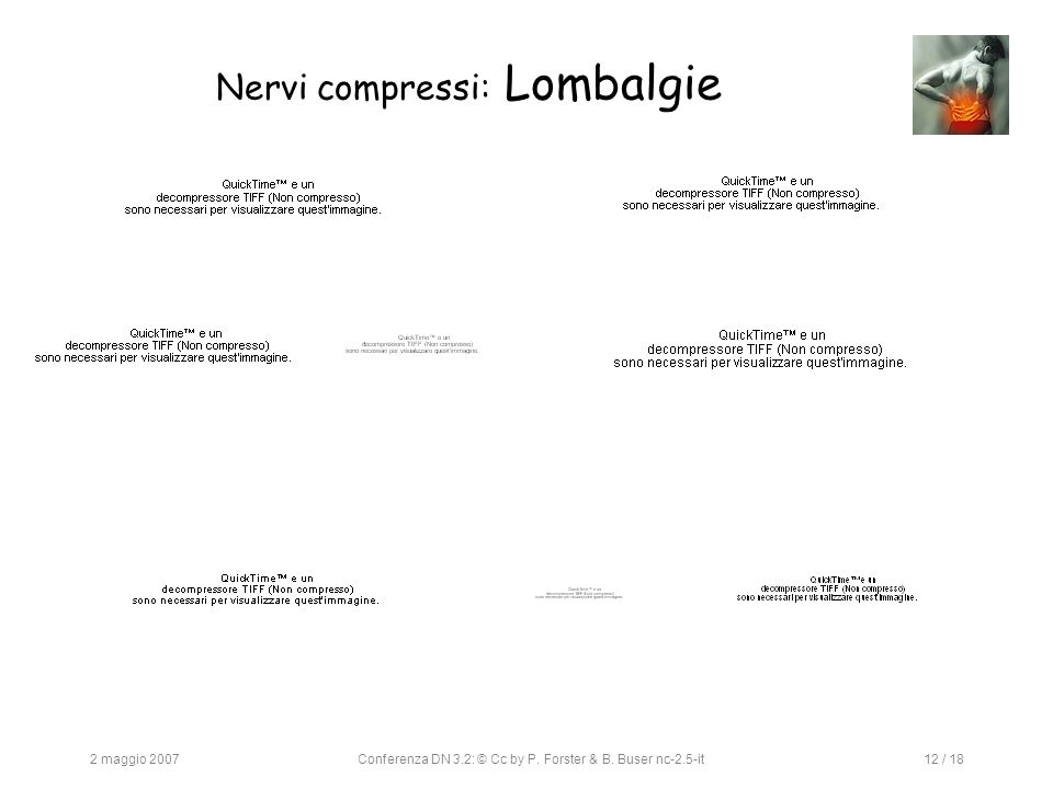 2 maggio 2007Conferenza DN 3.2: © Cc by P. Forster & B. Buser nc-2.5-it12 / 18 Nervi compressi: Lombalgie
