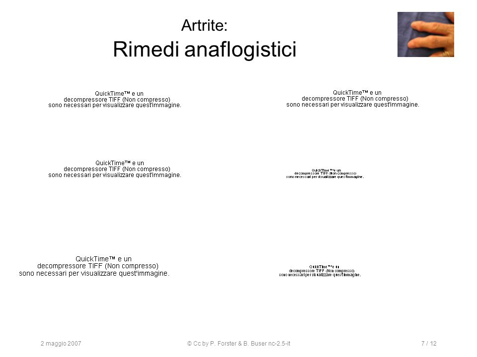 2 maggio 2007© Cc by P. Forster & B. Buser nc-2.5-it7 / 12 Artrite: Rimedi anaflogistici