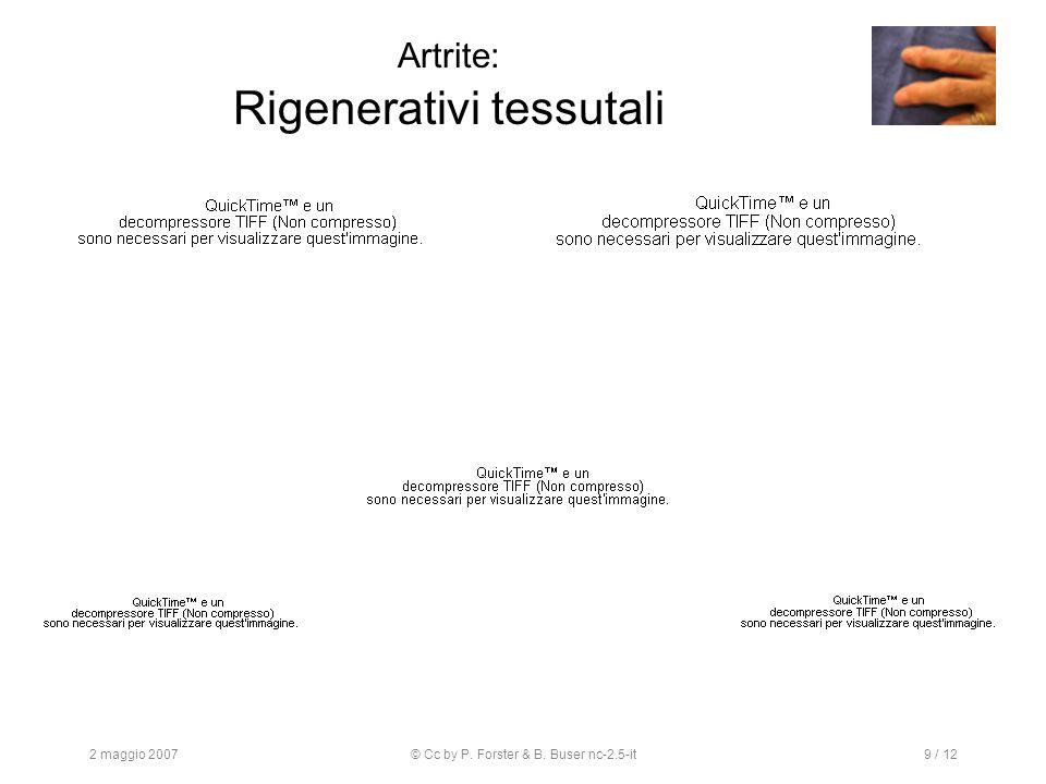 2 maggio 2007© Cc by P. Forster & B. Buser nc-2.5-it9 / 12 Artrite: Rigenerativi tessutali