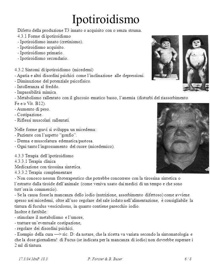 17.3.04 MmP 18.3P. Forster & B. Buser6 / 8 Ipotiroidismo Difetto della produzione T3 innato o acquisito con o senza struma. 4.3.1 Forme di ipotiroidis