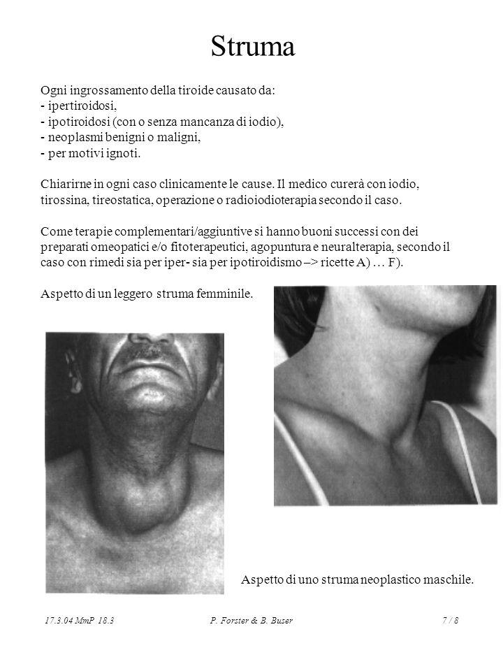 17.3.04 MmP 18.3P. Forster & B. Buser7 / 8 Struma Ogni ingrossamento della tiroide causato da: - ipertiroidosi, - ipotiroidosi (con o senza mancanza d