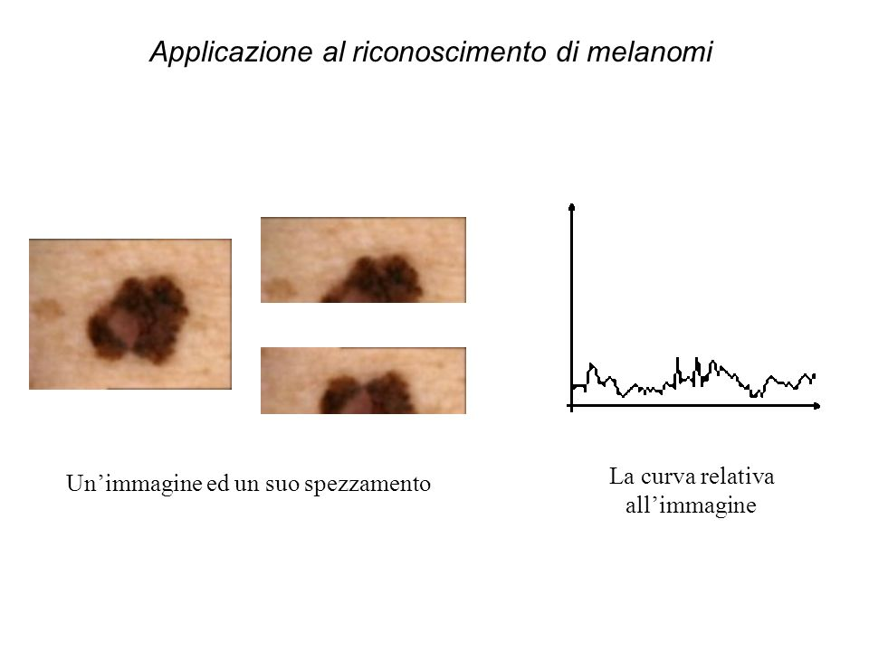 Unimmagine ed un suo spezzamento La curva relativa allimmagine Applicazione al riconoscimento di melanomi