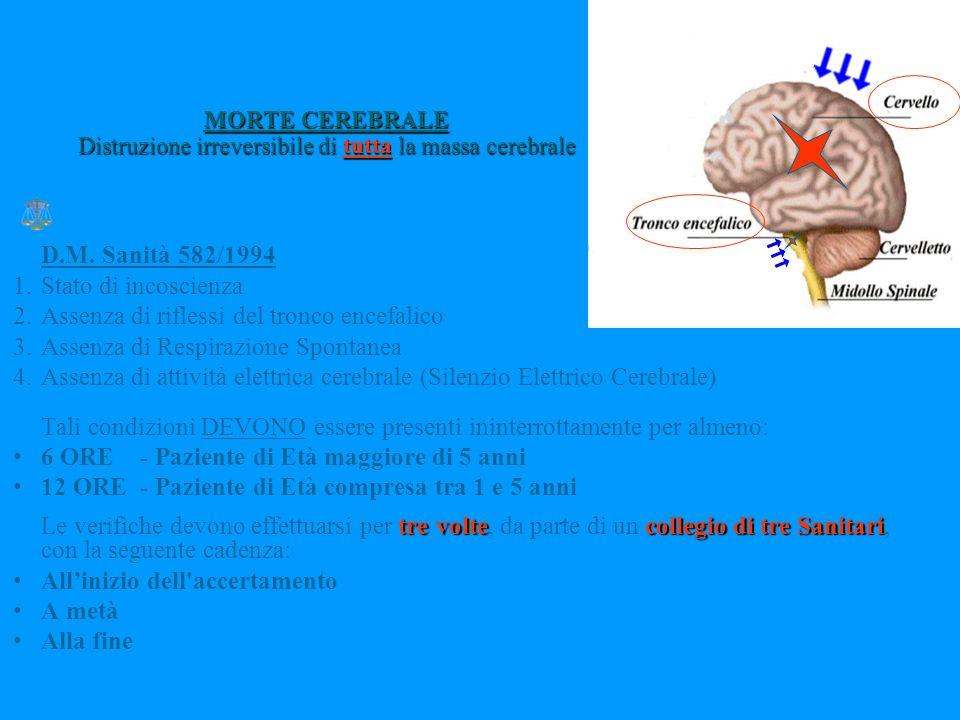 MORTE CEREBRALE Distruzione irreversibile di tutta la massa cerebrale D.M.